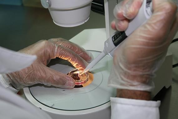 Aspiração Folicular (OPU) e Fecundação in vitro (FIV)